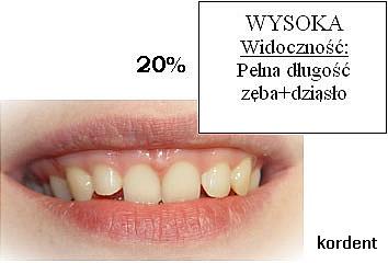Wysoka widoczność - pełna długość zęba + dziąsło