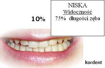 Niska widoczność - 75% długości zęba