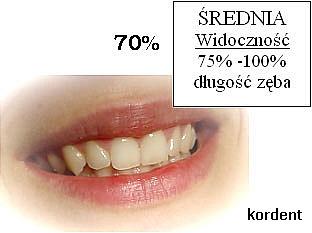 Uśmiech - średnia widoczność 75%-100% długość zęba